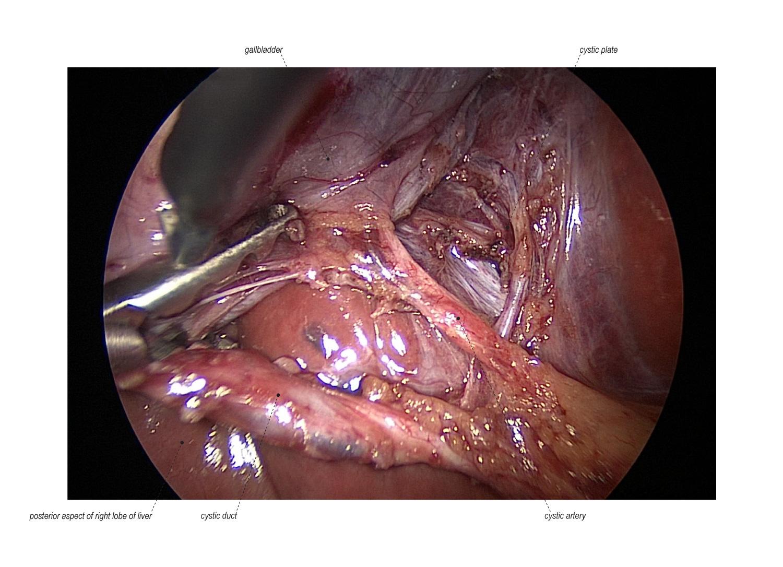 Mini Laparoscopic Cholecystectomy With Intraoperative Cholangiogram