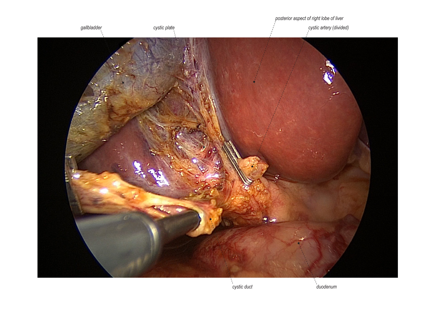 Mini-Laparoscopic Cholecystectomy with Intraoperative Cholangiogram ...