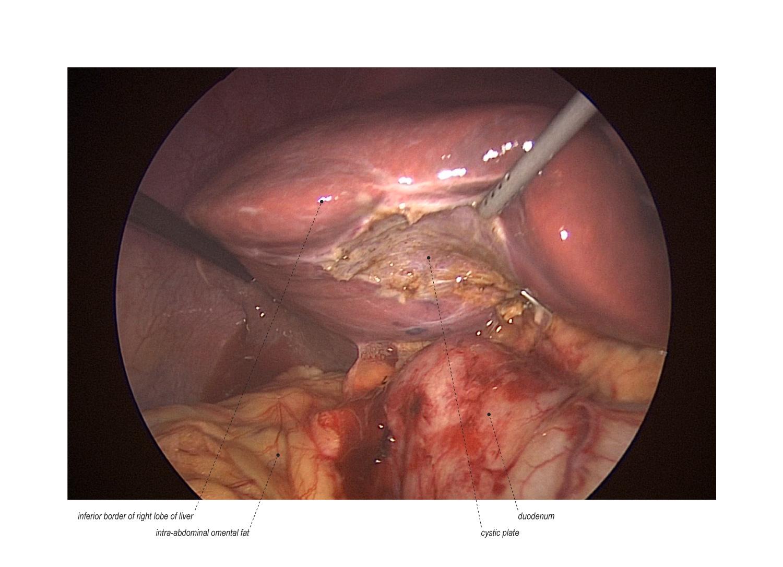 Mini-Laparoscopic Cholecystectomy with Intraoperative Cholangiogram ...
