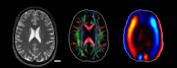 NIH grant on MRE of white matter