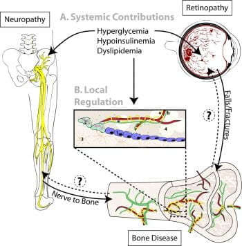 Peripheral Neuropathy as a Component of Diabetic Skeletal Disease
