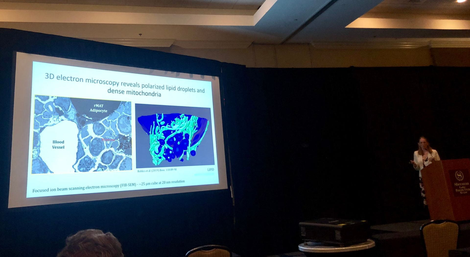 Dr. Scheller discusses nerves, bone, and adiposity at ISBM2019