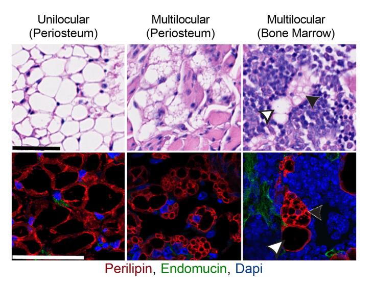 Bone marrow adipose tissue does not express UCP1
