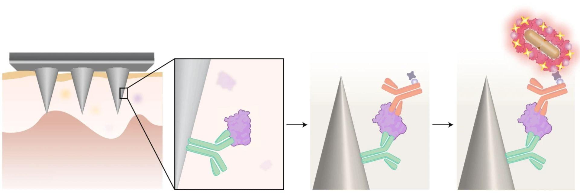 Microneedles for ultrasensitive biomarker detection