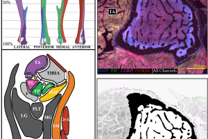 A neuroskeletal atlas: spatial mapping and contextualization of axon subtypes innervating the long bones of C3H and B6 mice