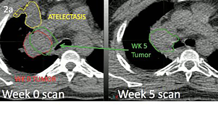 Image from Nate Tennyson's paper showing differences in tumor position at baseline and the fifth week of radiation therapy due to atelectasis changes.
