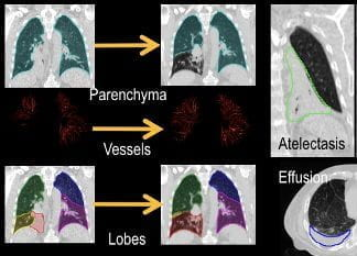 Left: registration process includes mass-preserving registration of the lung parenchyma, segmentation and registration of the lung lobes, and segmentation and registration of the pulmonary vessels.