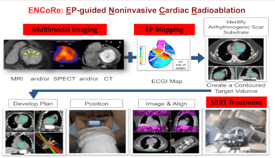 Steps in the workflow for noninvasive cardiac radioablation.
