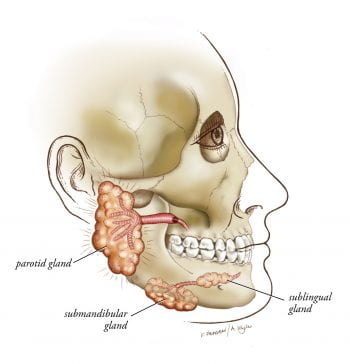 inflamed salivary ducts