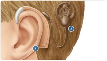 cochlear implant external view