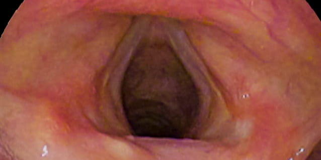 Stem cell implants offer hope for vocal cord paralysis