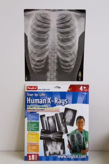Human-X-Rays-681x1024