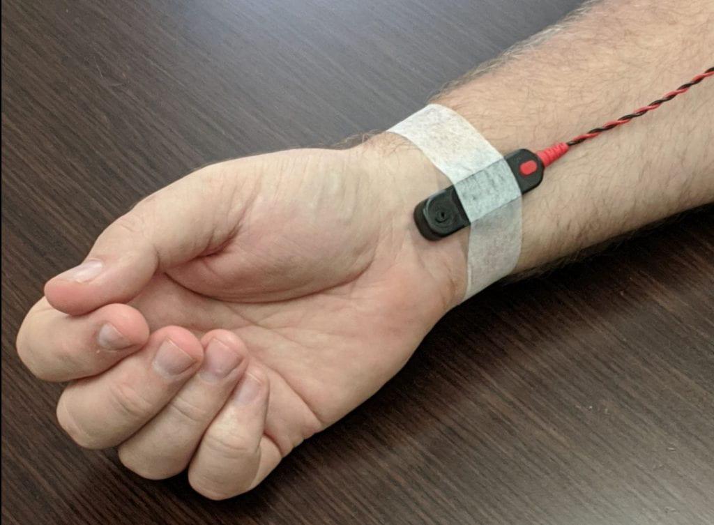 Stimulating electrode at the wrist
