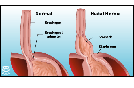 Illustration of the stomach and esophagus, showing normal anatomy compared to a hiatal hernia