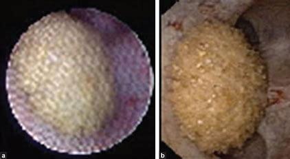 Ureteroscope images