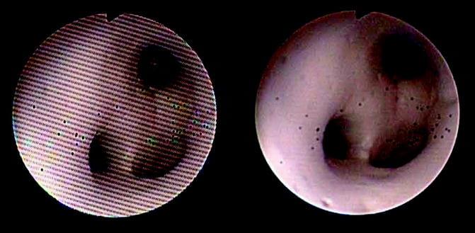 Ureteroscope image comparison