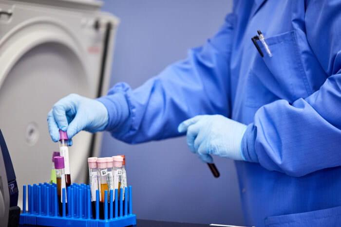 Experts urge caution in interpreting COVID-19 antibody tests