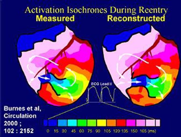 Electrocardiographic Imaging (ECGI)
