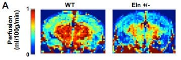 Knutsen et al., AJP Heart and Circ., 2018