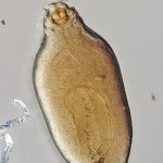 Unidentified podapolipid female lacking legs III and IV