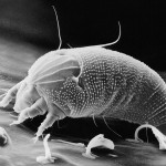 Eriophyoidea, such as this Aceria anthocoptes (LT-SEM image; courtesy USDA-SEL) never have more than 2 pairs of legs