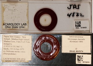 Before and after microscope labels