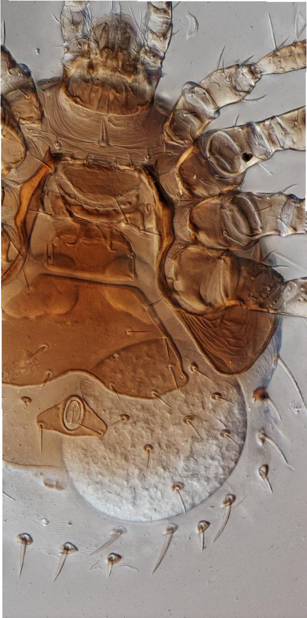 Micromegistus bakeri (Trigynaspida), female with egg, stacked image, 200x