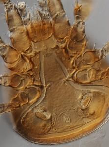 Heterozerconidae, n.gen., n. sp. (Sejina), stacked image, 200x