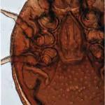 Ipiduropoda sp., ventral view of female