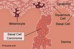 Skin cancer - cells
