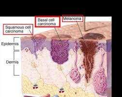 Skin cancers - comparisons