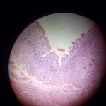 Stomach/ Duodenum Slide