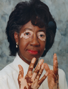 A woman who suffers from Vitiligo