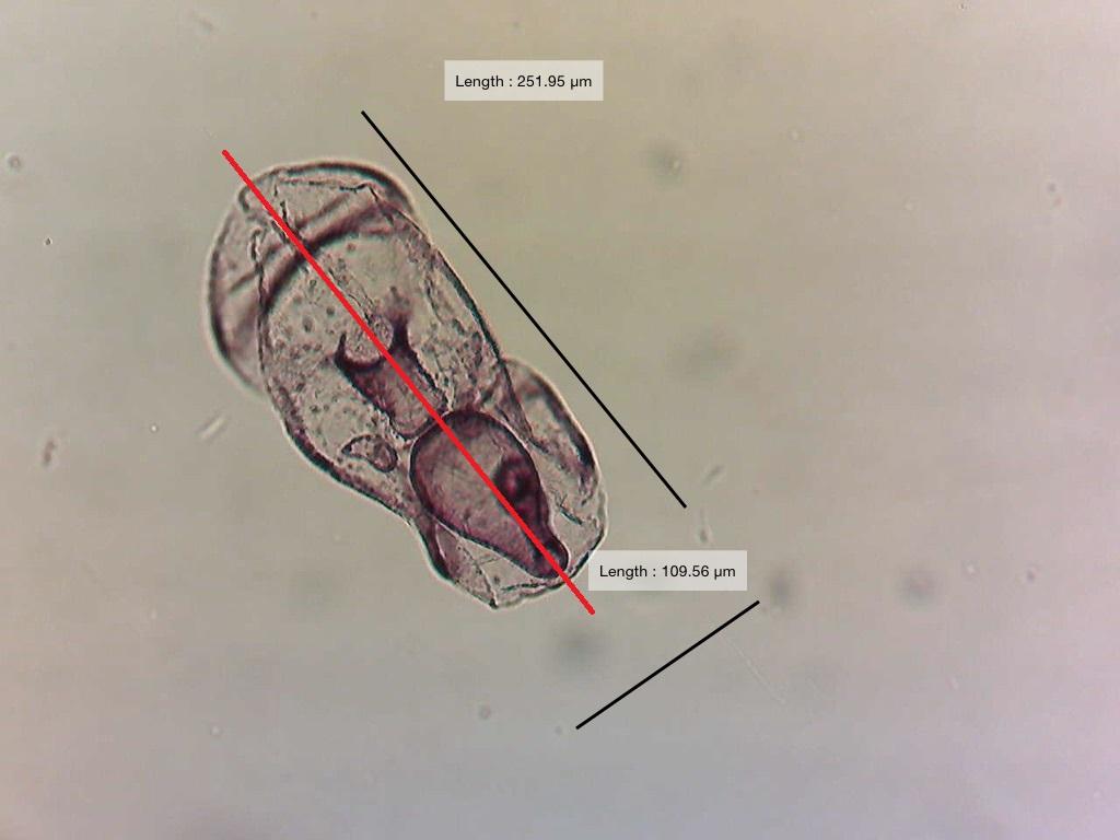 echinoderms organismal diversity martin starfish larvae photo 1