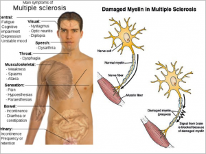 (Multiple sclerosis: causes, 2012)