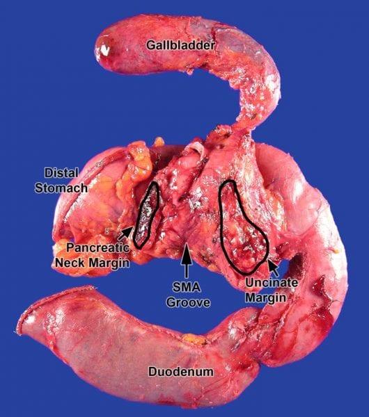 Pancreas (Whipple) | Gross Pathology Manual Uncinate Process Pancreas Anatomy