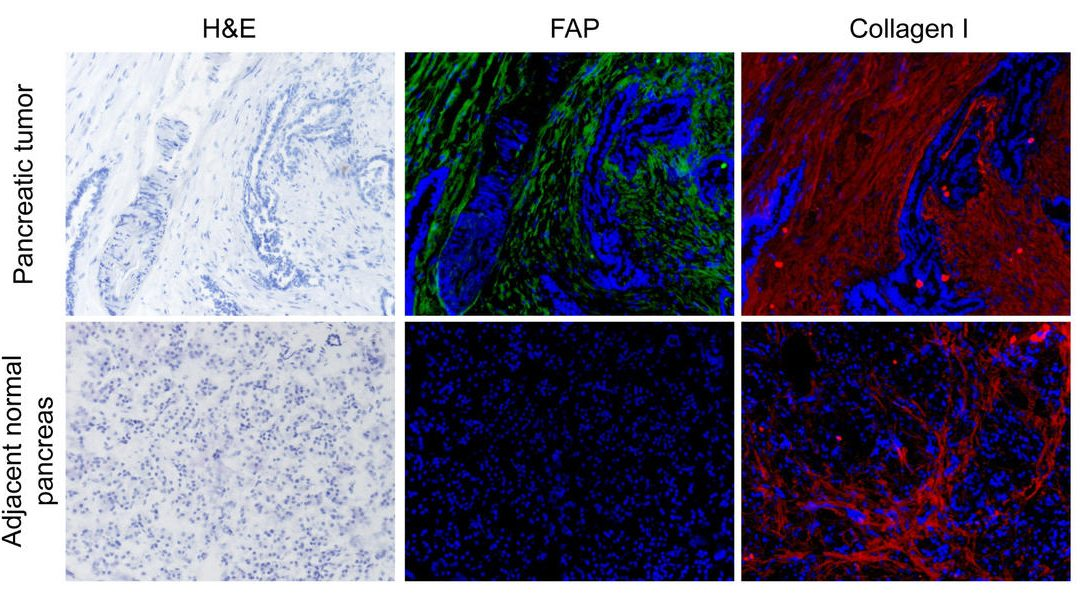 Targeting Enzyme in 'Normal' Cells May Impede Pancreatic Cancer's Spread, Penn Vet Team Shows