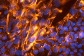 UCI joins CIRM in observing Stem Cell Awareness Day