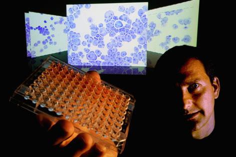 Biologists attack leukemia