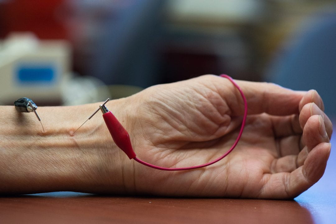 Researchers have identified the molecular mechanism behind electroacupunture's blood pressure-lowering benefits. Chris Nugent / UCI