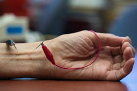 UCI study finds acupuncture lowers hypertension by activating opioids
