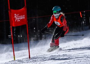 Albinism Won't Stop This Alpine Skier
